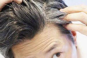 Top 5 loại thuốc chữa bạc tóc tốt nhất hiện nay 2019
