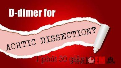 Photo of D-dimer là gì? Sự khác nhau giữa FDP và D-dimer ?