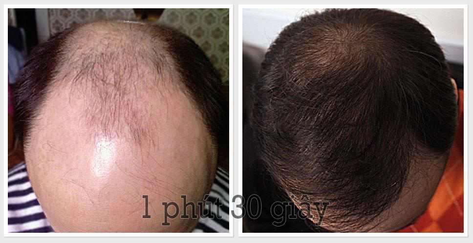 Photo of Top 5 loại thuốc mọc tóc hiệu quả tốt nhất hiện nay 2020