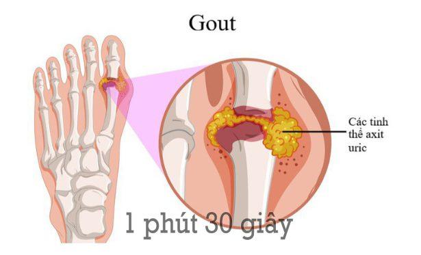 Photo of Bệnh gout là gì? nguyên nhân và cách trị
