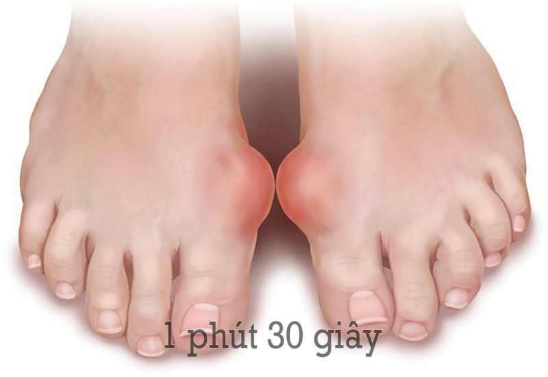 Bệnh gout nếu không điều trị sẽ gây ra biến chứng rất nguy hiểm.